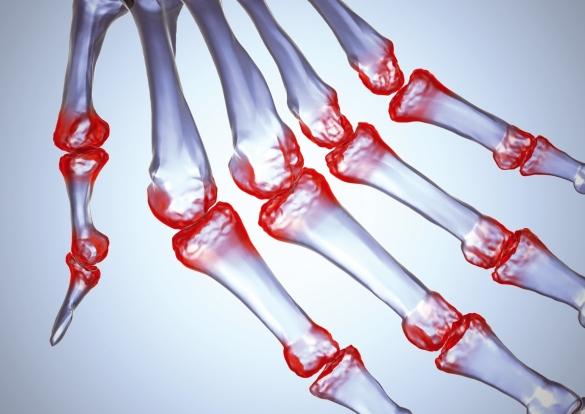 лечение сухожилия суставов народными средствами