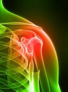 Ушиб плеча лечение